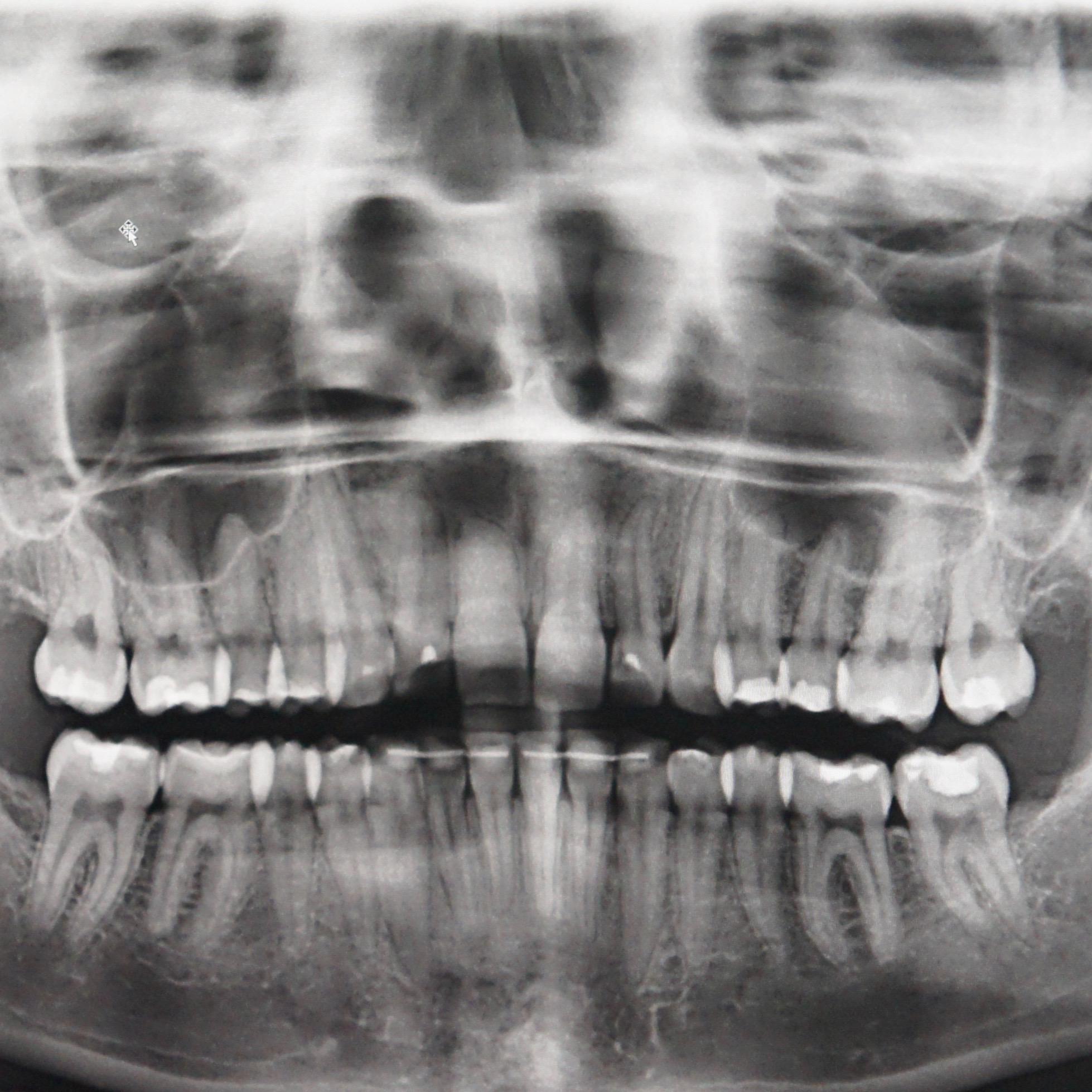 Zahn Rztlicher Notdienst Zahnarztpraxis In M Nchen